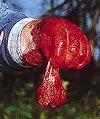 En gång ansågs björngallan vara oöverträffad medicin mot det mesta. I dag används den som smaksättare av brännvin.