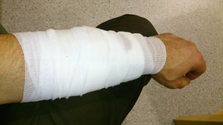Armen har blivit undersökt och bandagerad på sjukhuset i Falun.